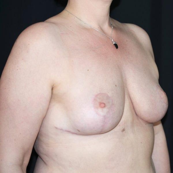 Kvinna efter bröstförminskning med lyft snett från sidan