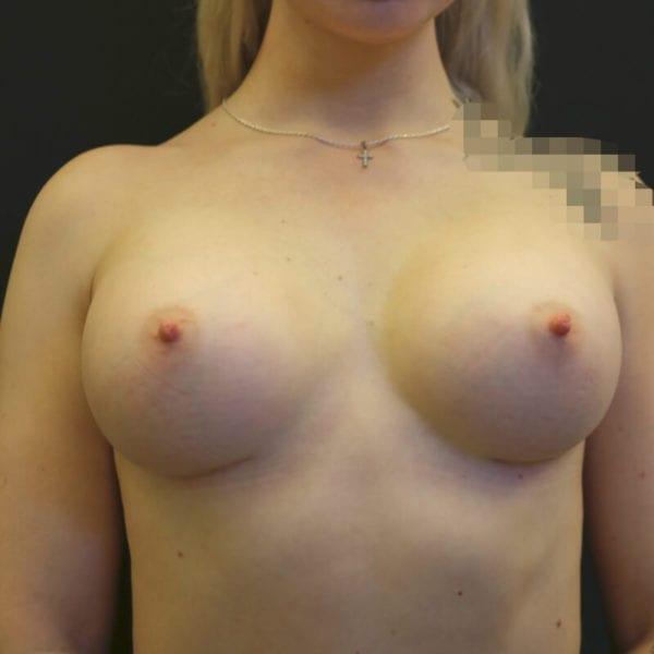 Kvinna framifrån sidan efter bröstförstoring på Akademikliniken