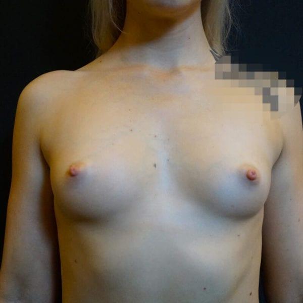Kvinna framifrån sidan före bröstförstoring på Akademikliniken