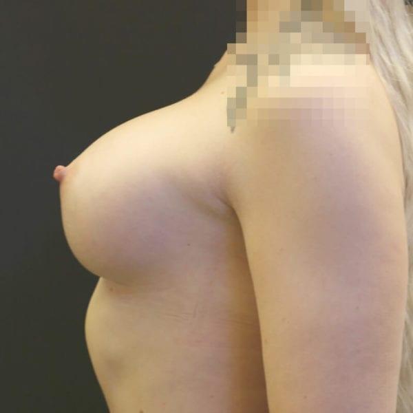 Kvinna från sidan efter bröstförstoring på Akademikliniken