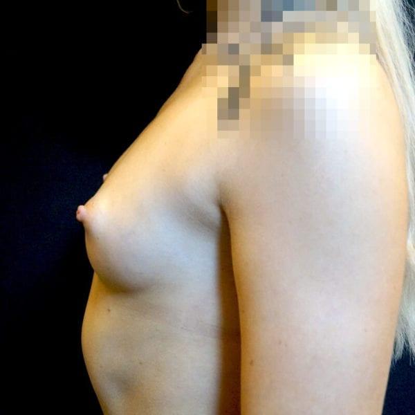 Kvinna från sidan före bröstförstoring på Akademikliniken