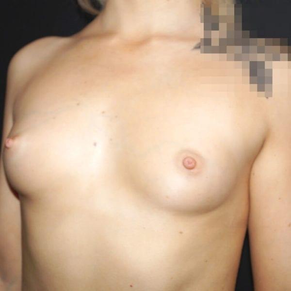 Kvinna snett från sidan före bröstförstoring på Akademikliniken