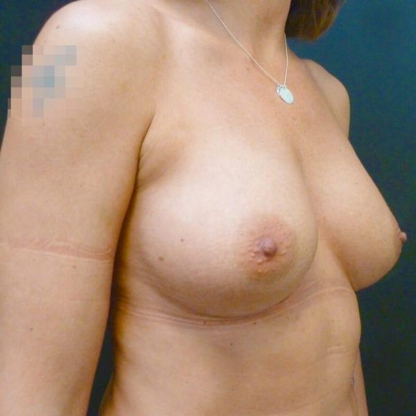 Byst efter bröstförstoring på Akademikliniken