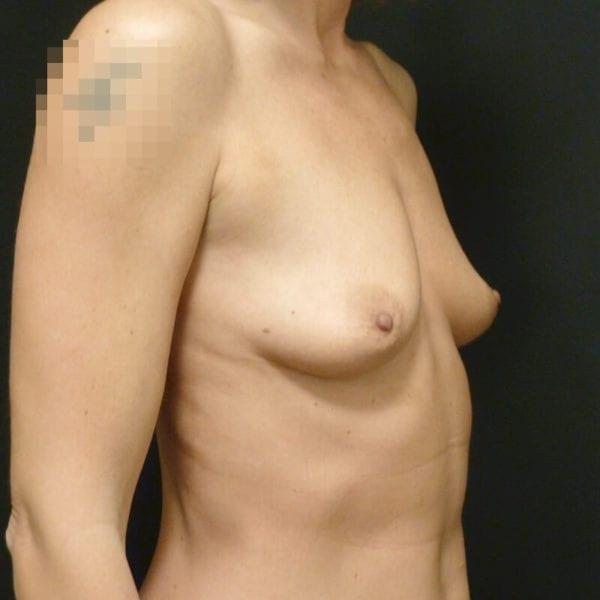 Byst innan bröstförstoring på Akademikliniken