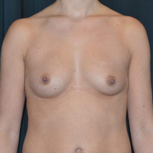 Byst före bröstförstoring