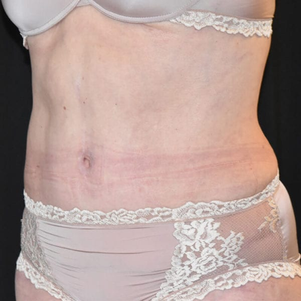 Patient snett från sidan efter bukplastik på Akademikliniken