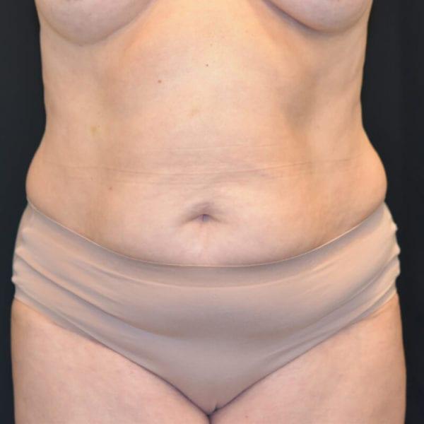 Patient framifrån innan bukplastik på Akademikliniken