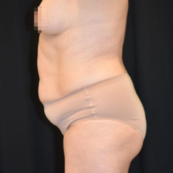 Patient från sidan innan bukplastik på Akademikliniken