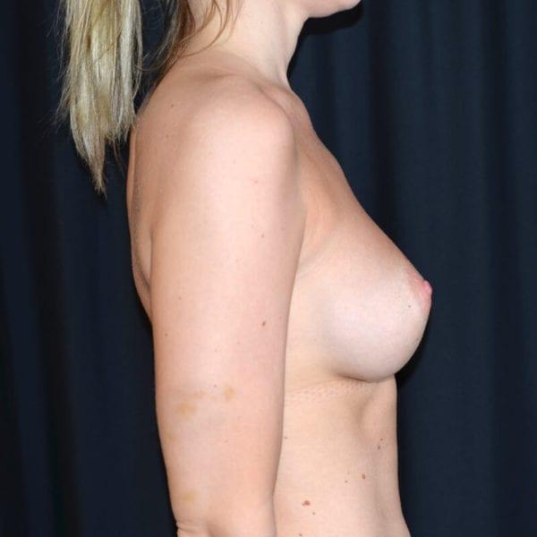Kvinna efter bröstförstoring sidan