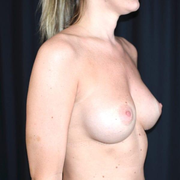 Kvinna snett från sidan efter bröstförstoring på AKademikliniken