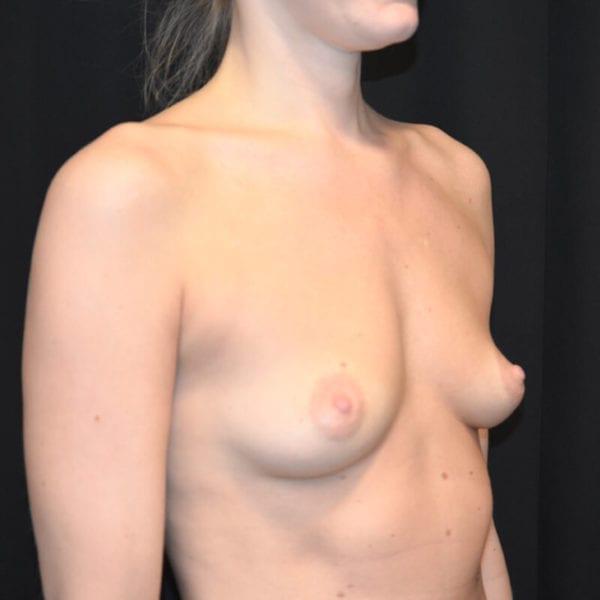 Kvinna innan bröstförstoring
