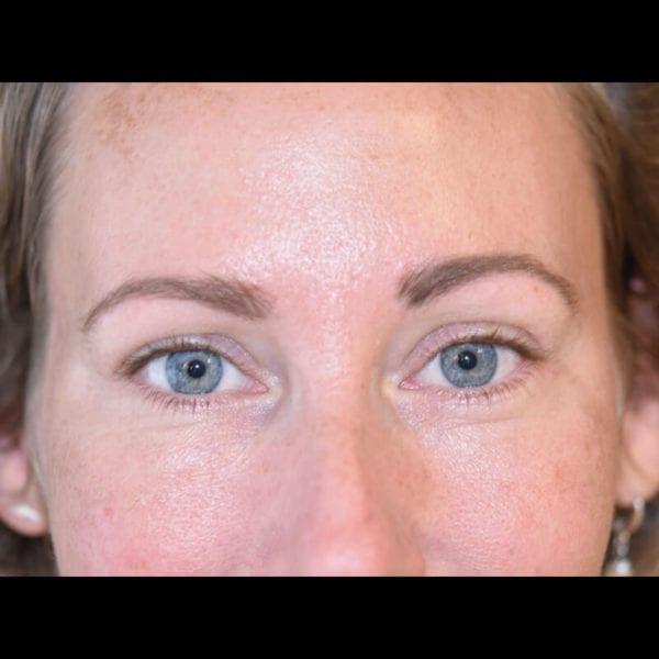 Ögonparti framifrån efter undre ögonlocksoperation på Akademikliniken