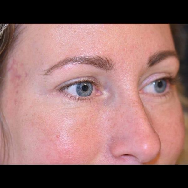Ögonparti snett från sidan efter undre ögonlocksoperation på Akademikliniken