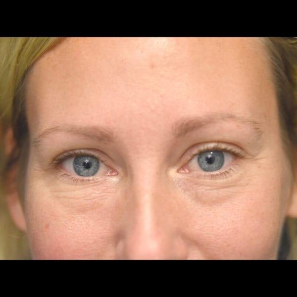 Ögonparti framifrån innan undre ögonlocksoperation på Akademikliniken