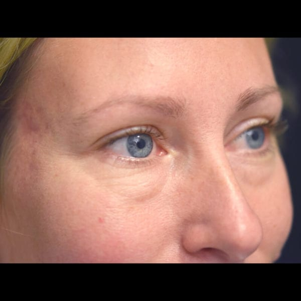 Ögonparti snett från sidan innan undre ögonlocksoperation på Akademikliniken
