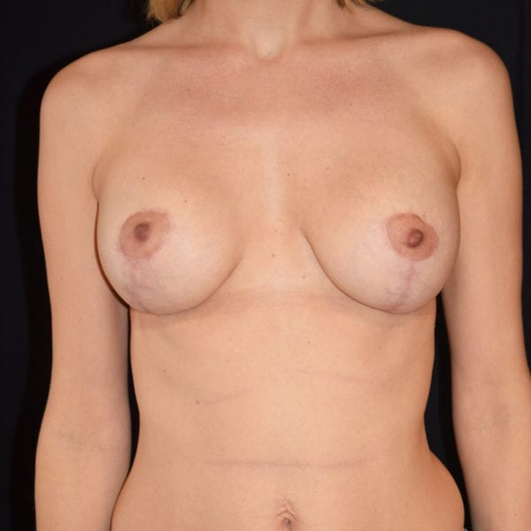 Byst efter bröstförstoring med implantat och lyft