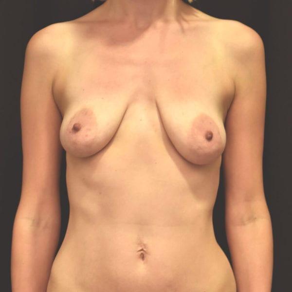 Byst innan bröstförstoring med implantat samt lyft