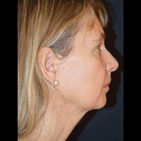 Patient från sidan efter fettsugning haka