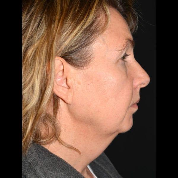 Patient från sidan innan fettsugning hala