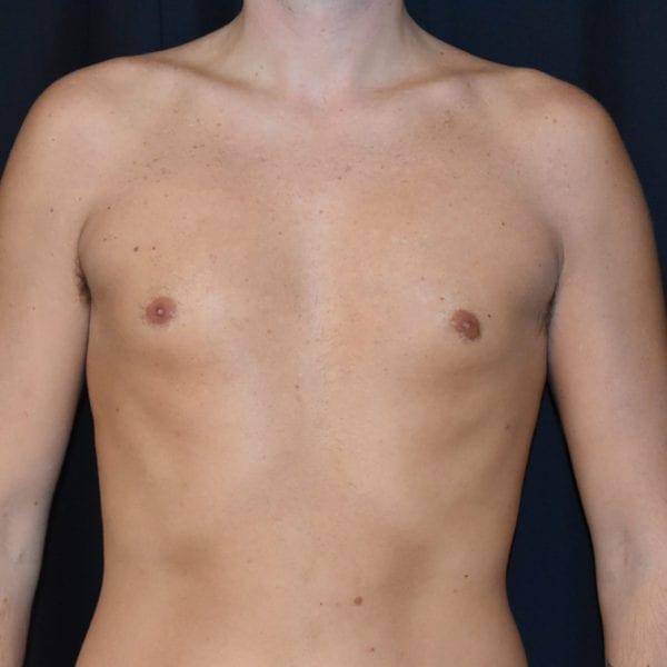 Patient framifrån efter gynekomasti