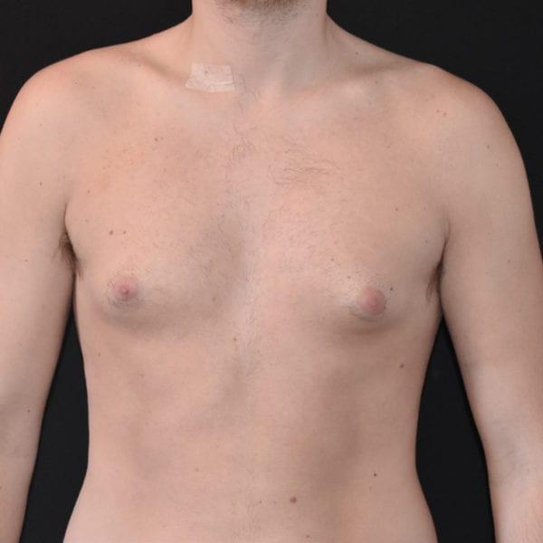 Patient framifrån Innan gynekomasti