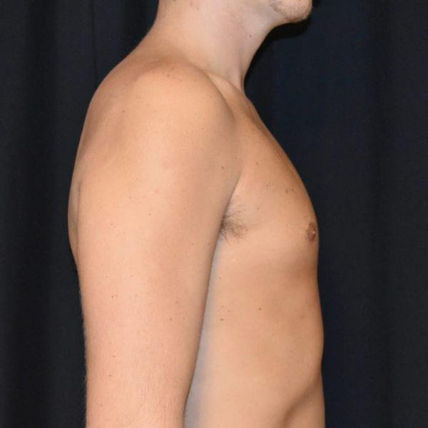 Patient från sidan efter gynekomasti