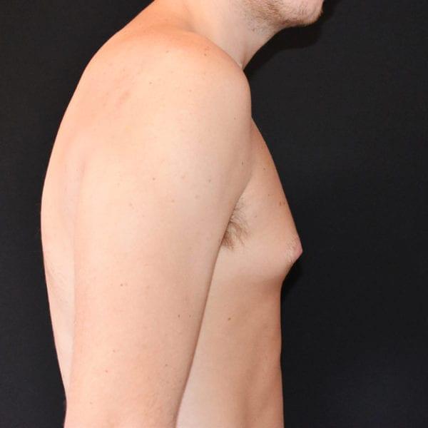 Patient från sidan innan gynekomasti