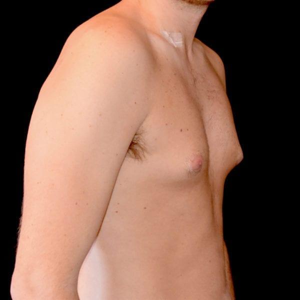 Patient snett från sidan innan gynekomasti