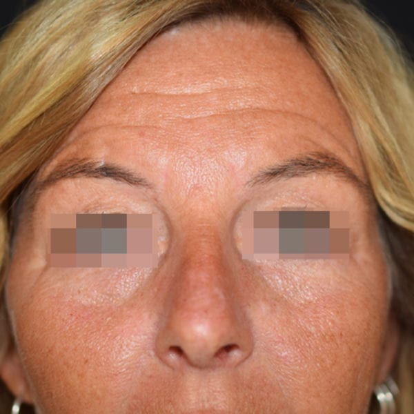 Patient framifrån efter undre ögonlocksplastik
