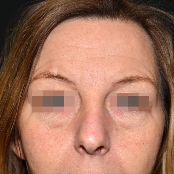 Patient framifrån före undre ögonlocksplastik