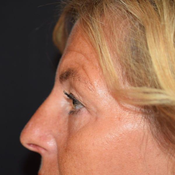 Patient efter undre ögonlocksoperation