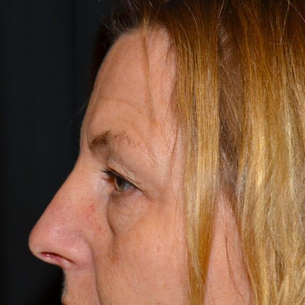 Patient från sidan innan ögonlocksplastik