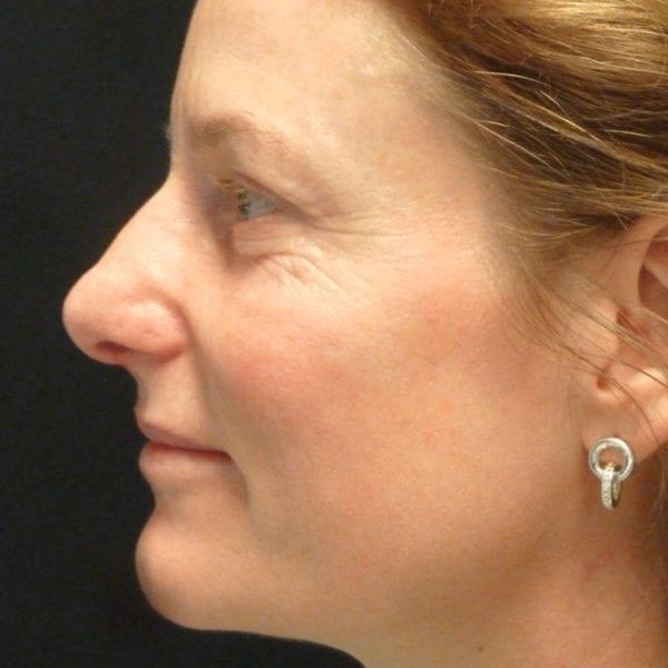 Patient efter näsplastik på Akademikliniken