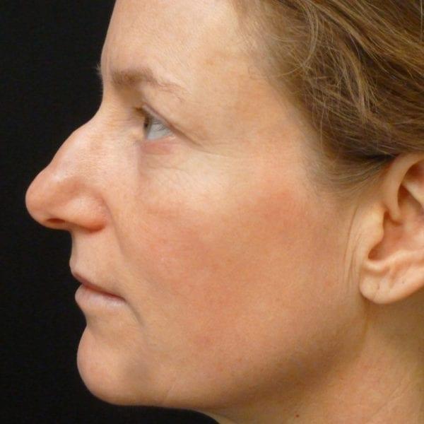 Patient före näsplastik på Akademiklinken