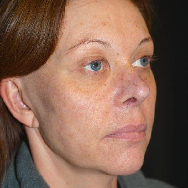 innan ansiktslyft snett från sidan
