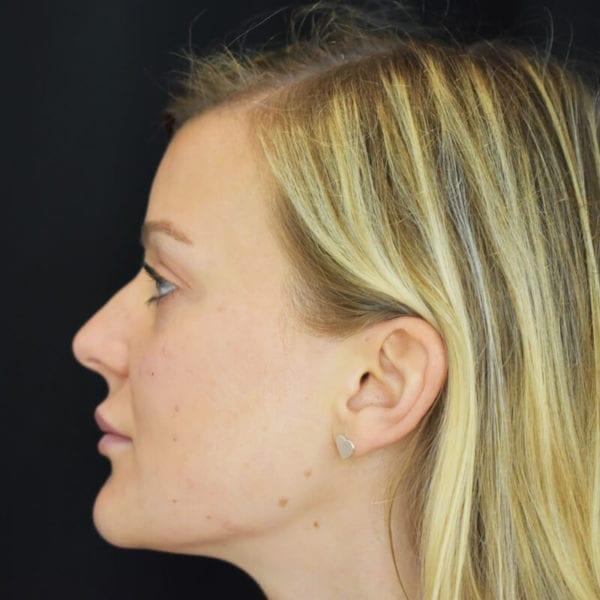 Patient från sidan efter fillerbehandling kind 205959