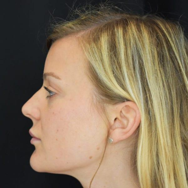 Patient från sidan före fillerbehandling kind 205959