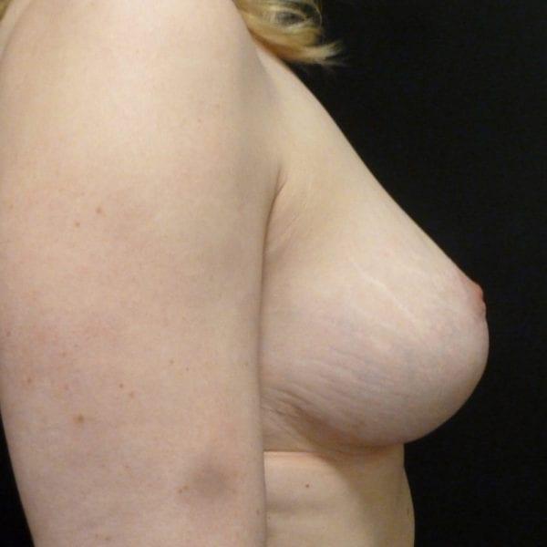 Patient från sidan innan bröstförminsking_181891