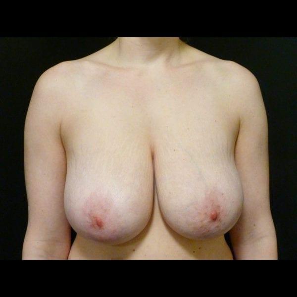 Patient framifrån innan bröstförminsking_181891