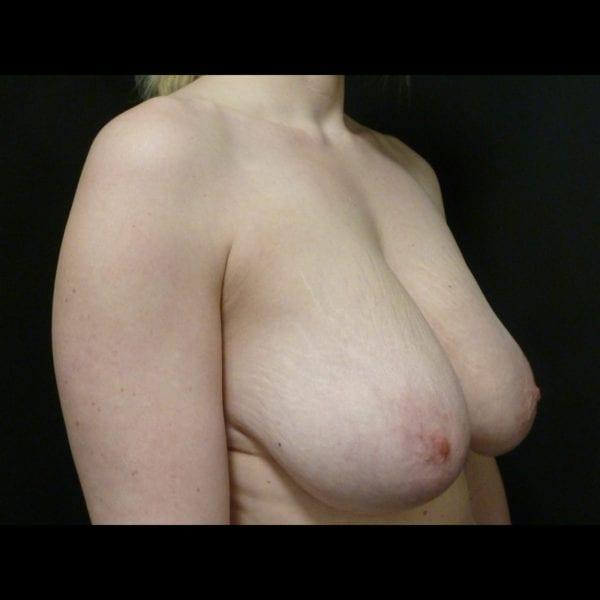 Patient snett från sidan innan bröstförminsking_181891