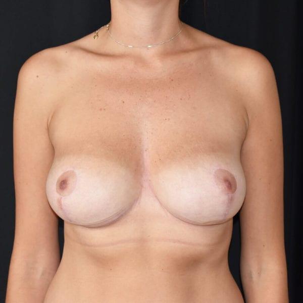 Kvinna efter bröstlyft. Framifrån_183758