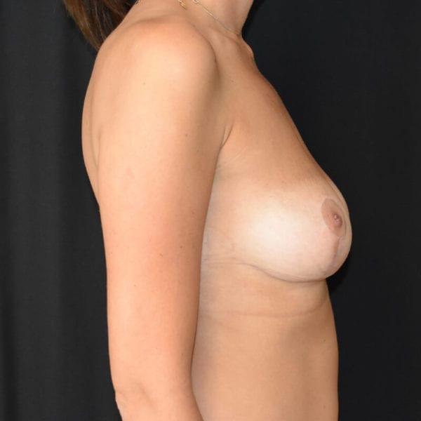 Kvinna efter bröstlyft. Från sidan_183758