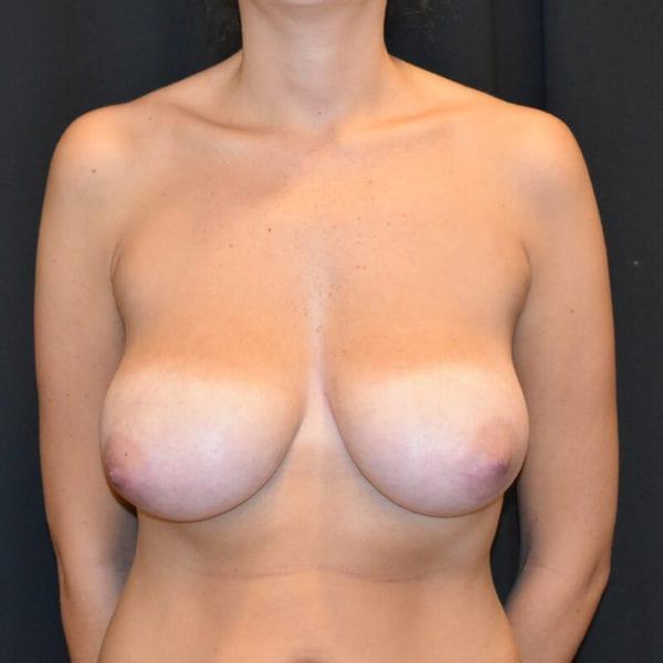 Kvinna innan bröstlyft. Framifrån_183758