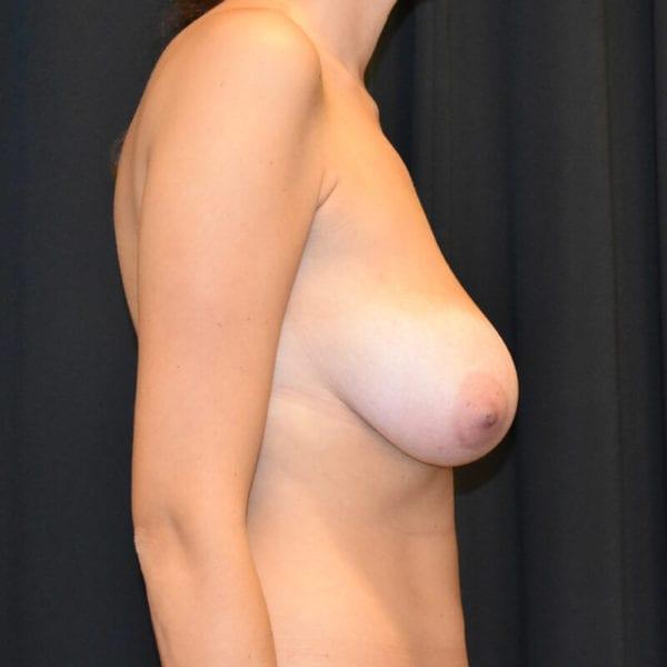 Kvinna innan bröstlyft. Från sidan_183758
