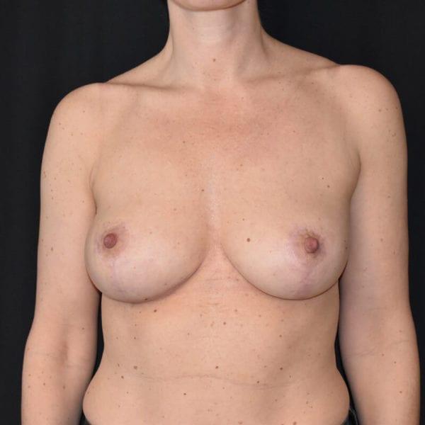 Kvinna efter bröstlyft. Framifrån_193176