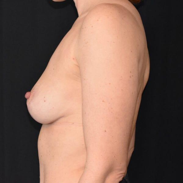 Kvinna efter bröstlyft. Från sidan_193176