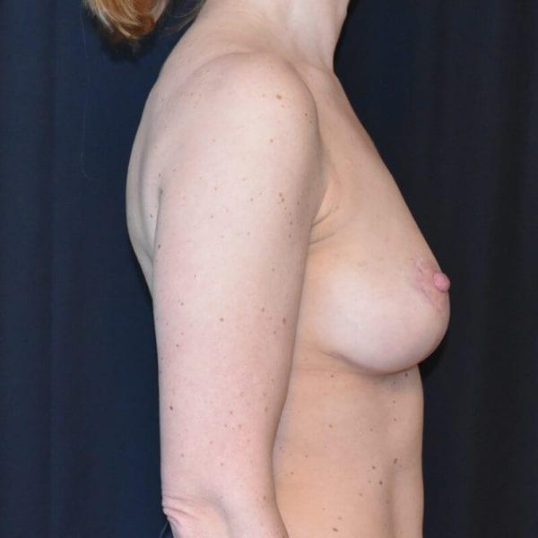 Kvinna efter bröstlyft. Från sidan1_193176