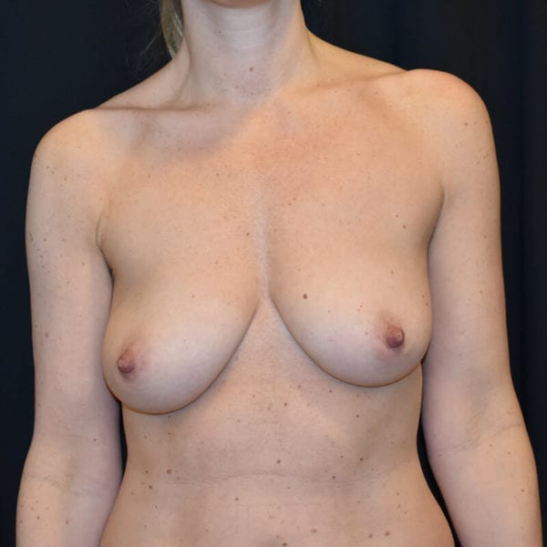 Kvinna innan bröstlyft. Framifrån_193176