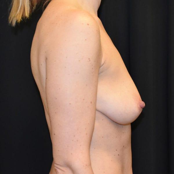 Kvinna innan bröstlyft. Från sidan_193176