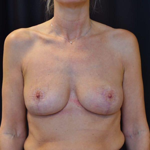 Efter bröstlyft. Patient framifrån_194090